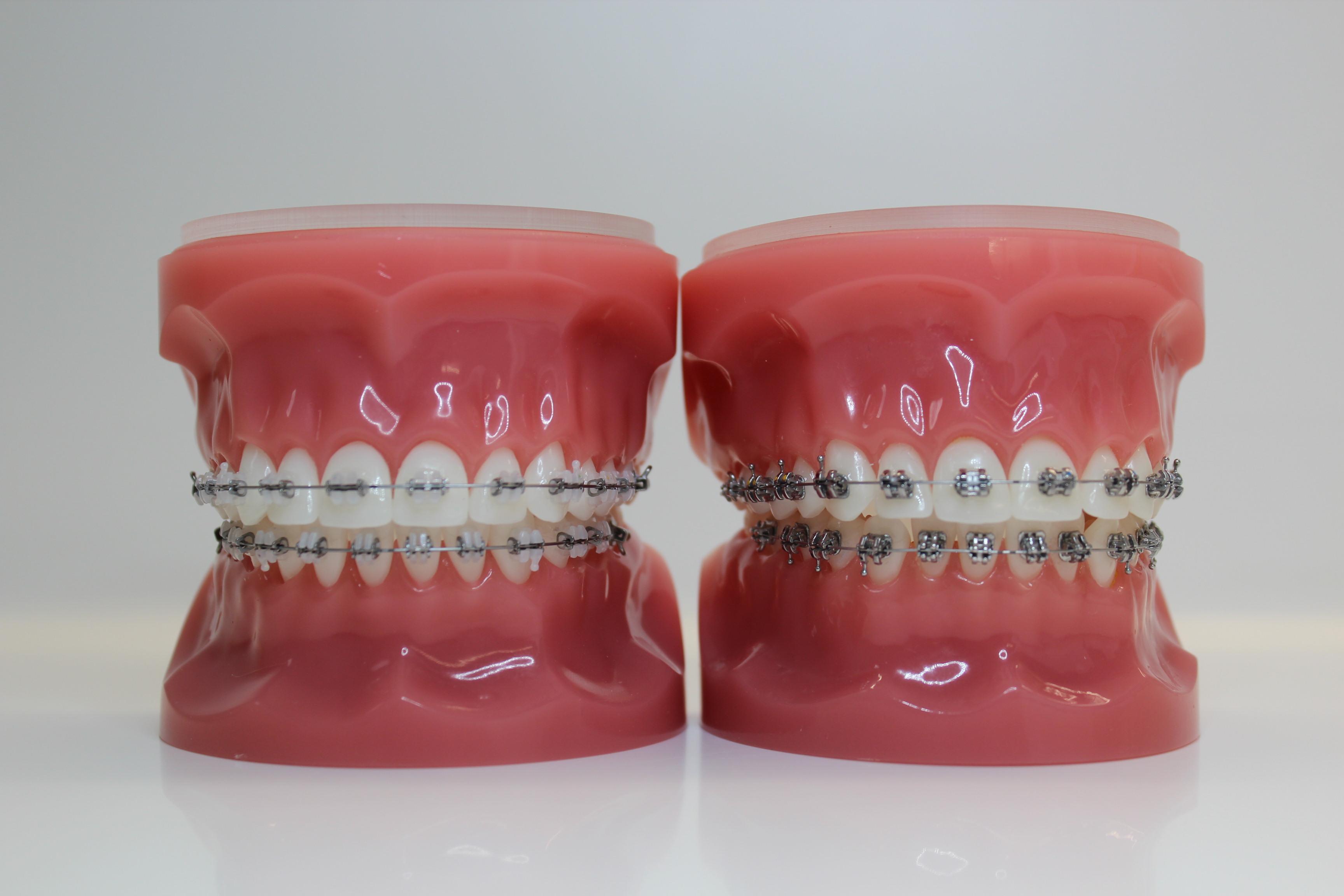 Wie putze ich mit fester Zahnspange?